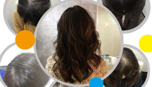 分け目の薄毛も治る!女性専門育毛クリニックを体験!(2)
